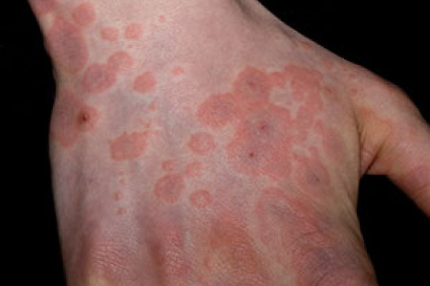 What Triggers Erythema Multiforme Chemistdruggist