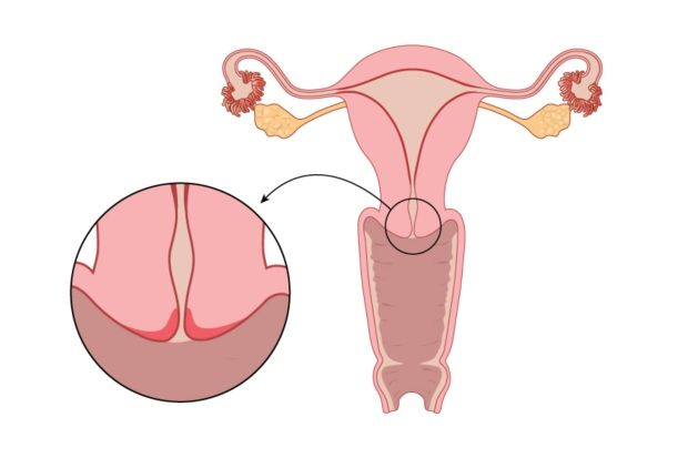 Cervical cancer is the uncontrolled development of abnormal cells in the lining of the cervix